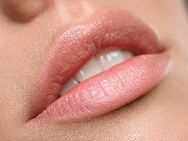 Рестилайн губ,