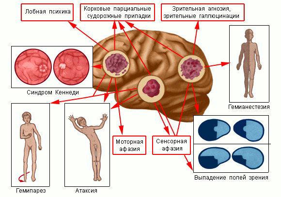 Вирусный гепатит у детей особенности
