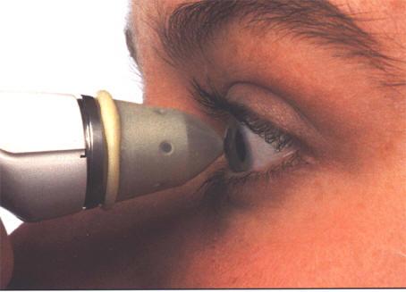 Распространенные дефекты зрения